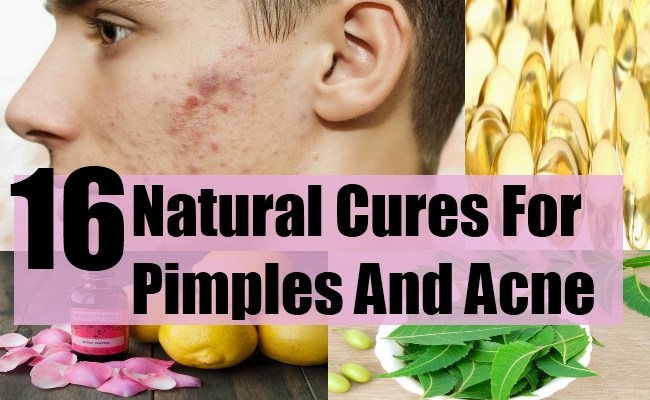 16 Natural Cures For Pimples And Acne