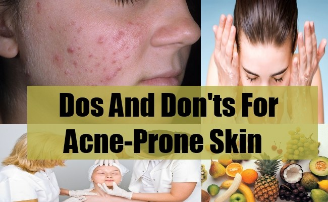 Dos And Don'ts For Acne-Prone Skin