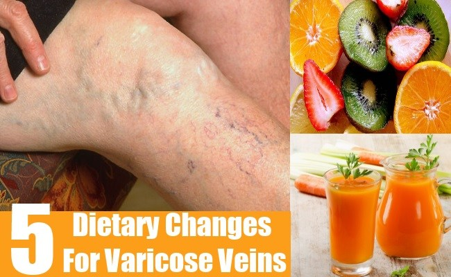 Dietary Changes For Varicose Veins