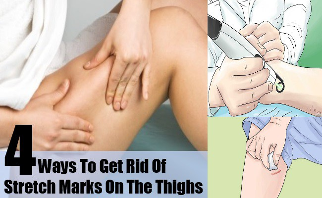 Ways To Get Rid Of Stretch Marks On The Thighs