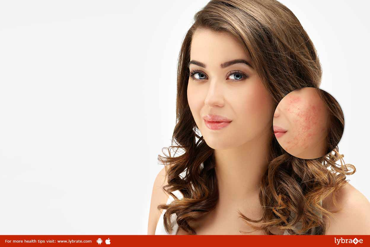 Acne and Scars - Homeopathic Treatment For It!