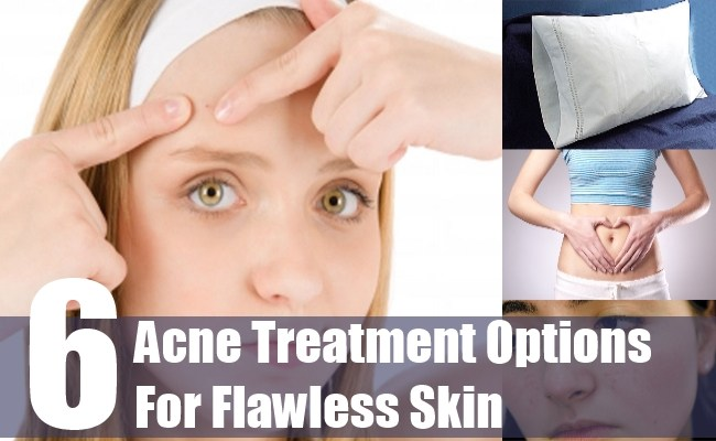 6 Acne Treatment Options For Flawless Skin