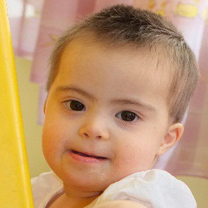 Down Syndrome in Children
