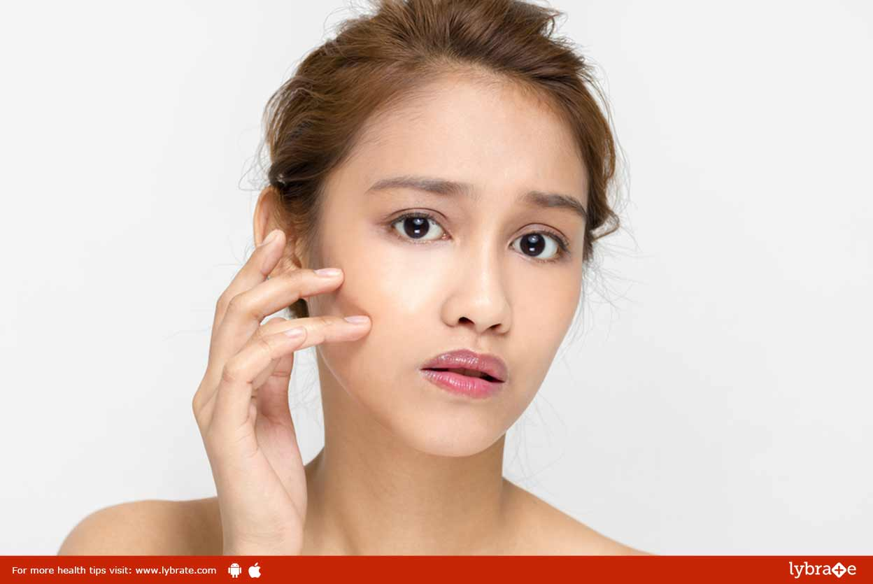 Acne Scars and Skin Damage - Guide To Treating It!