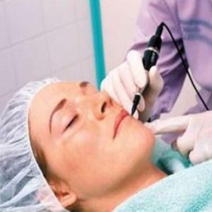 laser acne treatment