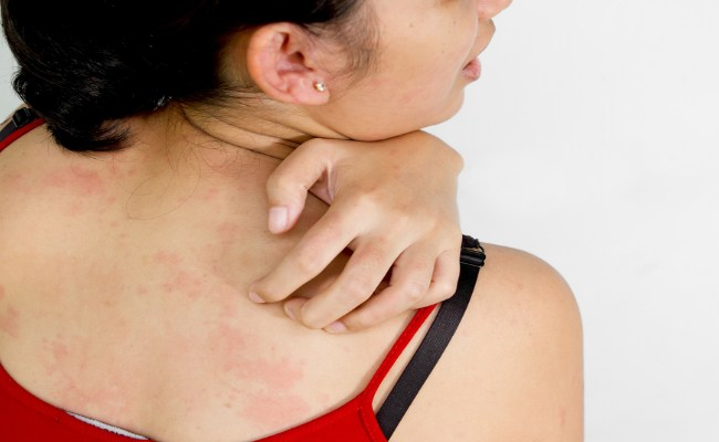 common causes of itching