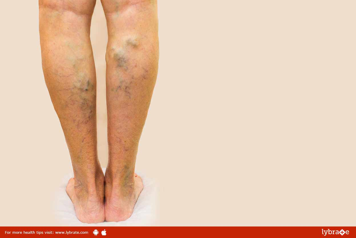 Varicose Veins- Causes and Treatments!