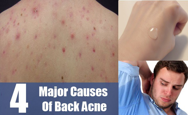 Major Causes Of Back Acne