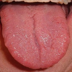 sore tongue