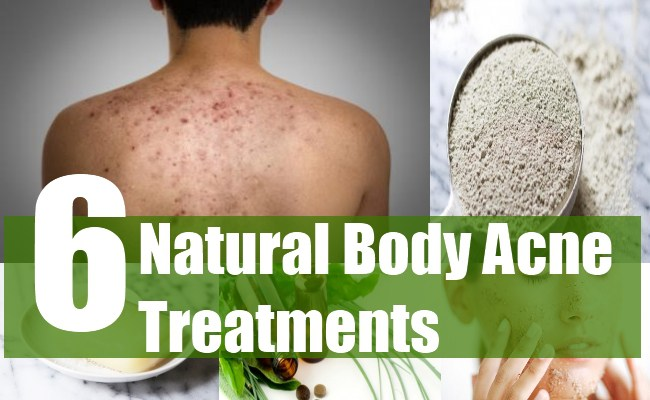6 Natural Body Acne Treatments